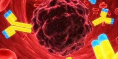 Crean prueba de sangre que detectaría el cáncer